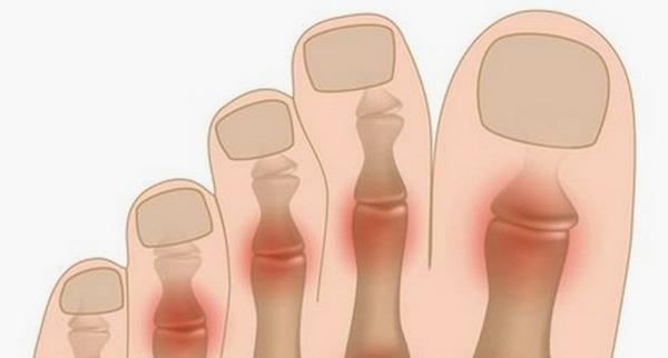 Артрит пальців ніг: симптоми і лікування
