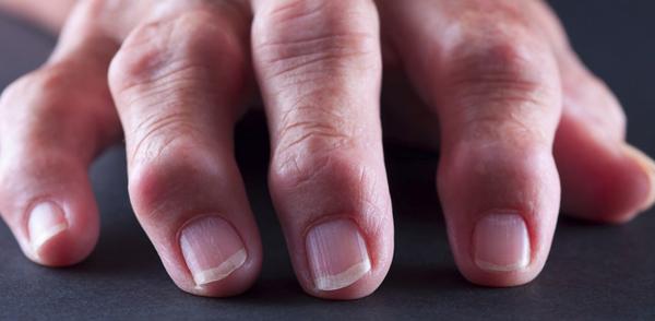 Ревматоїдний артрит: причини, симптоми, лікування, дієта, наслідки