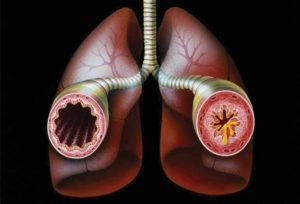 Як і чим лікувати сухий кашель, який довго не проходить