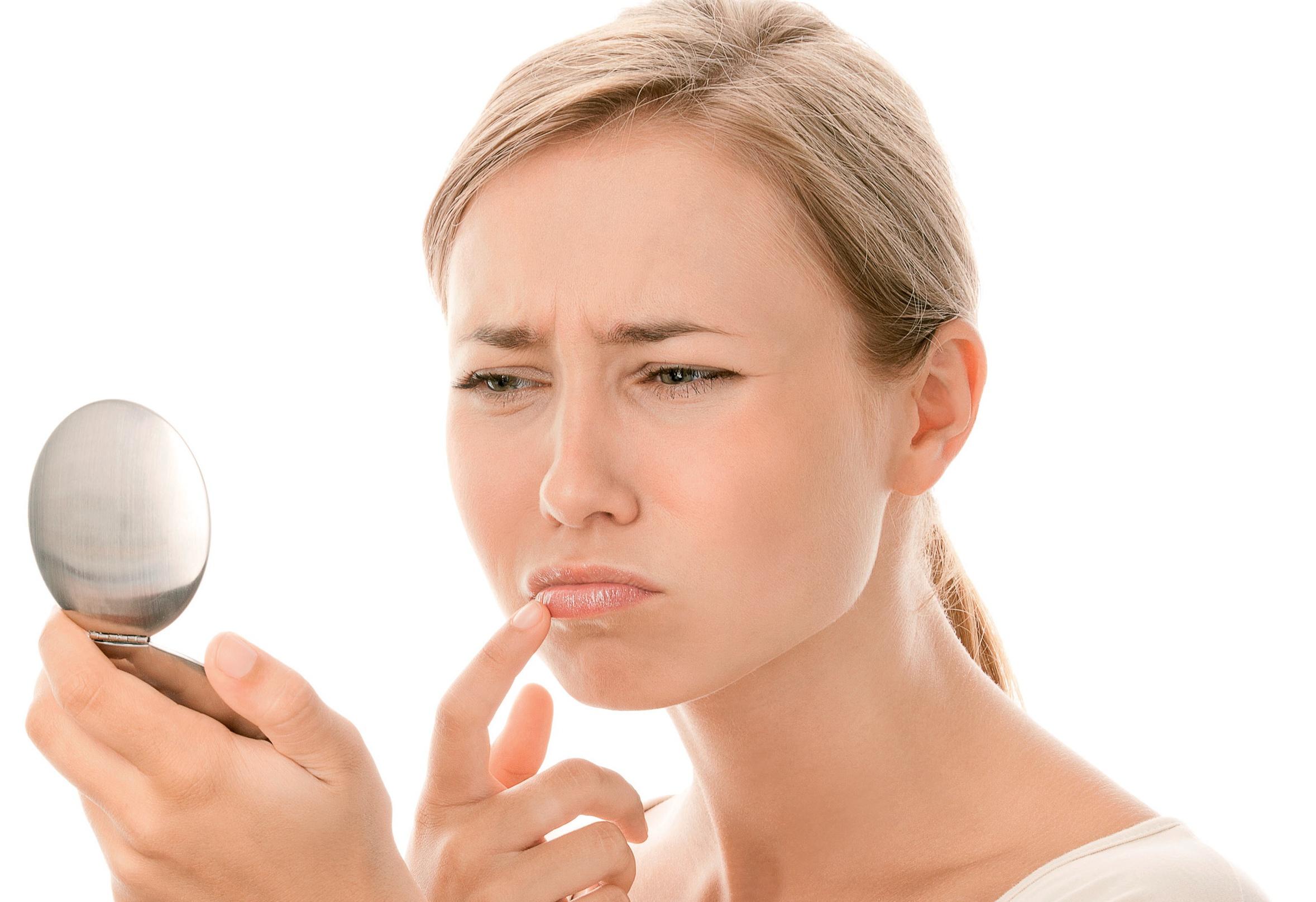 Заїди в куточках рота і губ: причини і лікування у дорослих і дитини, як позбутися?